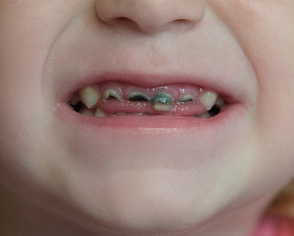 Closeup of child's teeth with cavities